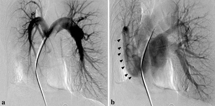 Arteriography: Medical Test To Blood Vessels - Scope Heal